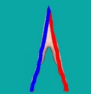Arch_View_02-CombinedArchCoverage
