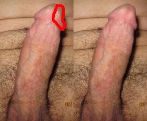 Case_Study_01_Commentary_06-PenisHeadLeftDent