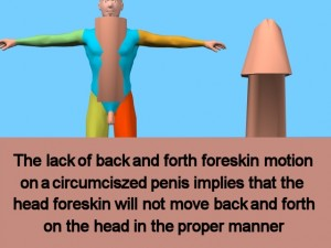 How_Circumcision_Affects_Body-StuckForeskinLabeled