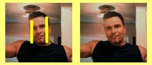 Facial_Distortion_02-RightSideFaceShorter