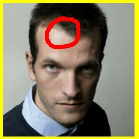 Head_Analysis_03-BrightSpotOnForehead