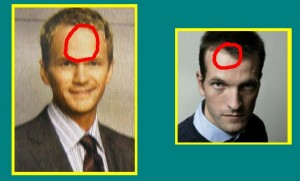 Head_Analysis_03-ForeheadCirclesCompare