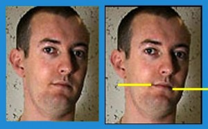 Head_Analysis_10-RightMouthHigher