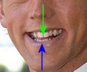 Head_Analysis_11-TeethMisaligned