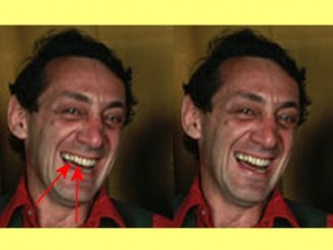 Homosexuality_Changed_Heads_01-CigarMouthTeethDistorted