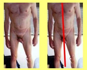 Male_Full_Body_Analysis_10-BodyCenterlineNotVertical