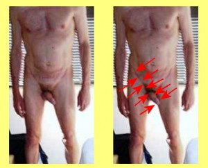 Male_Full_Body_Analysis_10-PenisInguinalCanalSameAngle