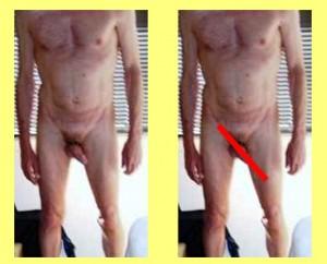 Male_Full_Body_Analysis_10-PenisPointsLeft