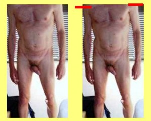 Male_Full_Body_Analysis_10-RightShoulderLower
