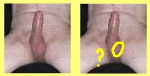 Male_Full_Body_Analysis_11-RightTesticleMissing