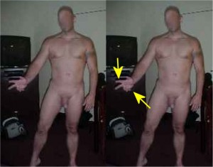 Male_Full_Body_Analysis_26-RingPinkyCurledToPalm