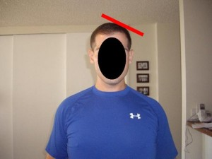 Male_Full_Body_Analysis_28-LeftHeadTopFlattening