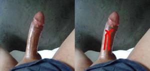 The_Right_Pointing_Penis_Analysis_01-BloodVesselsCross