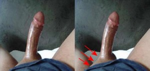 The_Right_Pointing_Penis_Analysis_01-LeftGroinSkinStretched