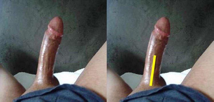 penis bent towards left