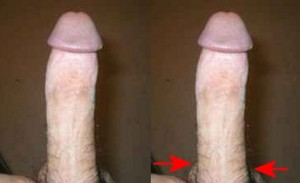 The_Right_Pointing_Penis_Analysis_02-LeftTesticleProtrudesMore