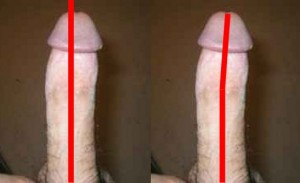The_Right_Pointing_Penis_Analysis_02-PenisTipCurvedRight
