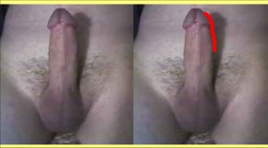 The_Straight_Pointing_Penis_Analysis_09-PenisShapeChanges