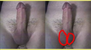 The_Straight_Pointing_Penis_Analysis_09-RightTesticleVisiblyLarger