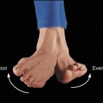 Inverted Or Everted Feet