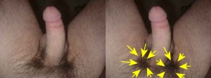 The_Left_Pointing_Penis_Analysis_12-RightMoreHairDensity