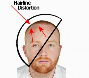 Head_Change_Overview-AngledDomeHairlineDistortion